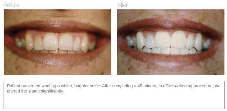 Teeth Whitening Before and After | Dentist Deer Park