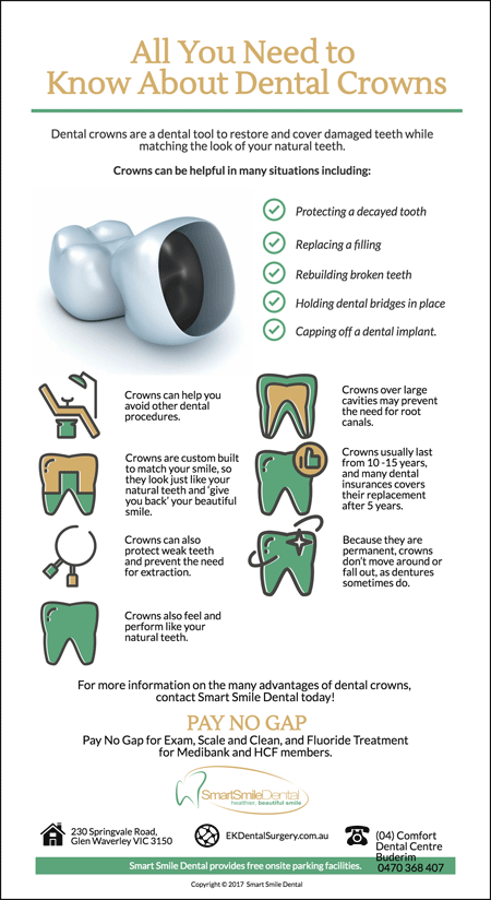 What-You-Need-To-Know-About-Dental-Crowns
