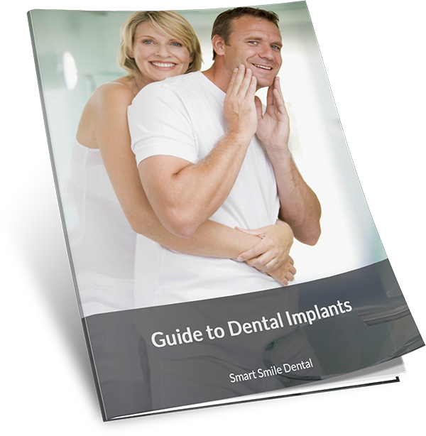 Guide to Dental Implants by SSD